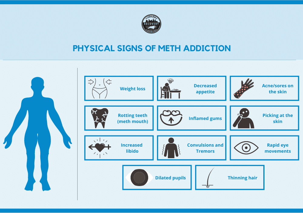 Physical signs of meth addiction